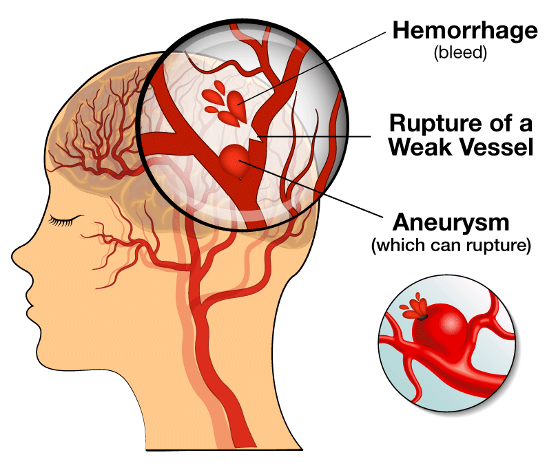 Illustrating brain hemorrhage, weak vessel rupture and aneurysm relating to hemorrhagic stroke and brain aneurysm causes